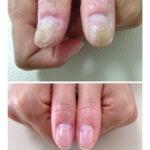 爪の凹凸 洗濯板状 before after