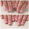深爪矯正(嚙み癖)・爪が倍の長さになりました