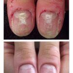 トラブルネイル・爪周りの荒れと爪表面のデコボコ