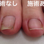 足の巻爪矯正