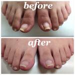 足の巻爪矯正 before after