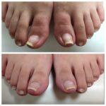 巻爪矯正・痛い巻爪の原因は